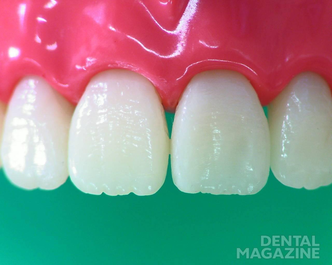 Рис. 1. Модель зубов верхней челюсти.