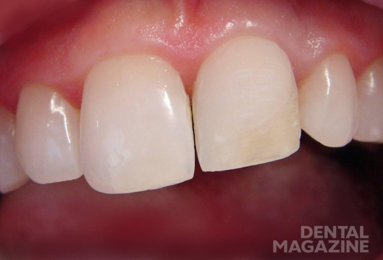 Рис. 5. Зуб после препарирования вестибулярной поверхности.