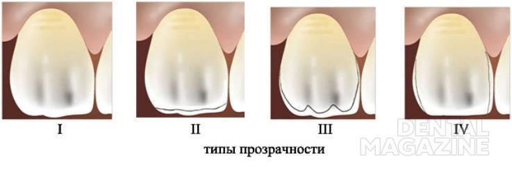 Рис. 1. Типы прозрачности эмали: 1 — зубы с прозрачным слоем по всей поверхности, 2 — с прозрачным слоем в области режущего края, 3 — с прозрачным слоем в области режущего края и проксимальных поверхностей, 4 — с прозрачным слоем только в области проксимальных поверхностей.