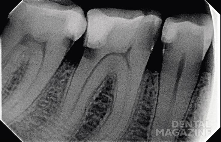 Рис. 2. Рентгенограмма зубов.