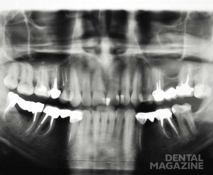 Рис. 8. Ортопантомограмма больного С. через 6 мес. после ортопедического лечения.