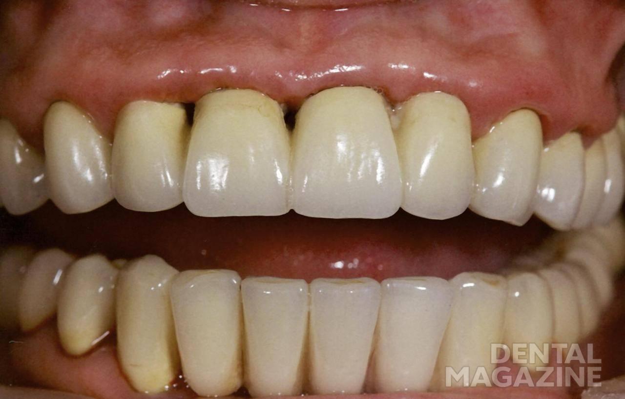 Рис. 3. Пациентка В., 2001 г. На этапе протезирования нижнего зубного ряда.