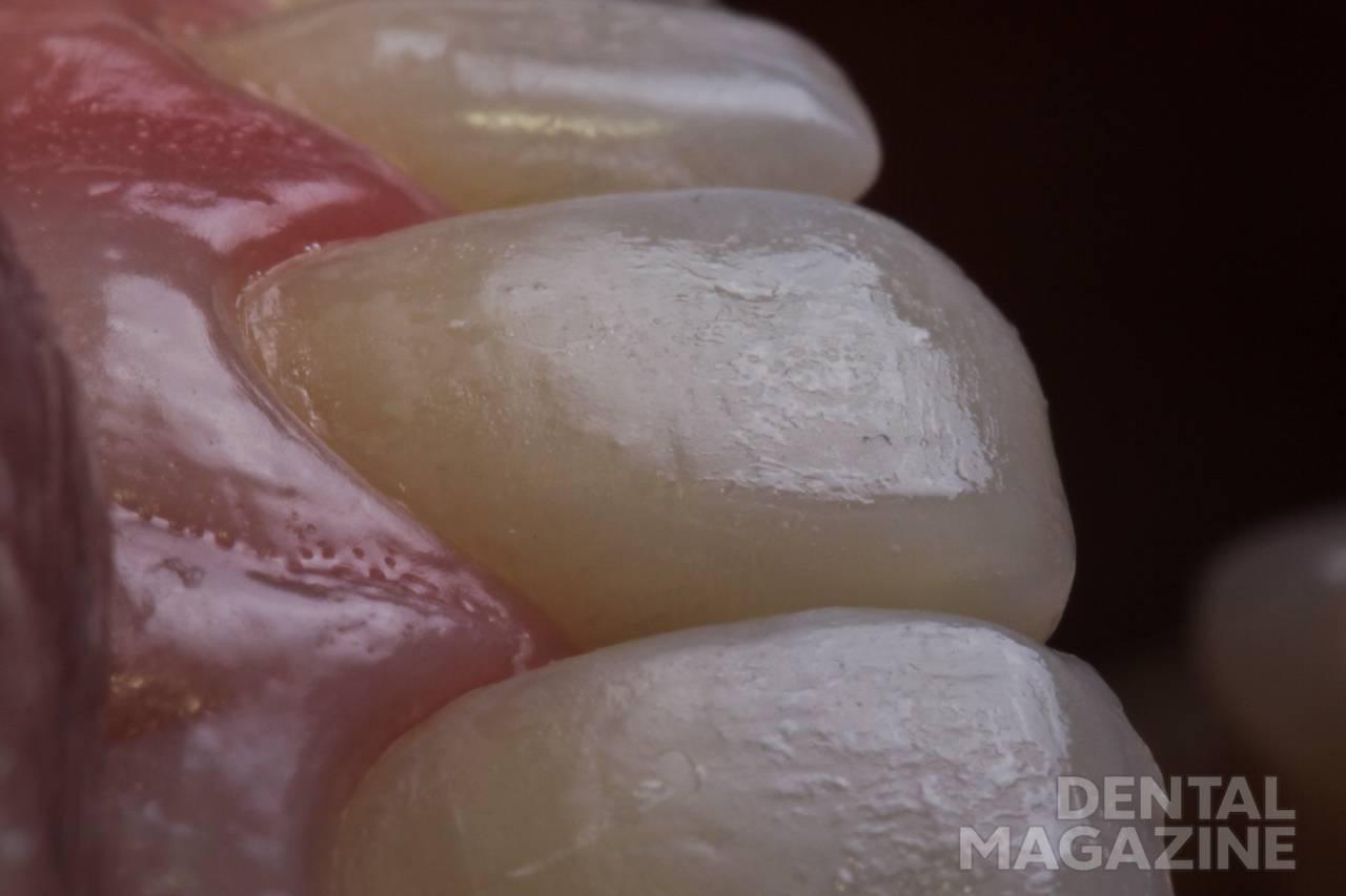 Рис. 7. Вид зубов после завершения нанесения и адаптации слоев композита.