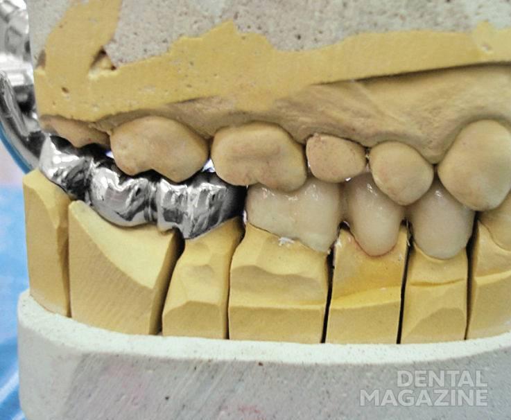 Рис. 6. Литой мостовидный протез на гипсовой модели.