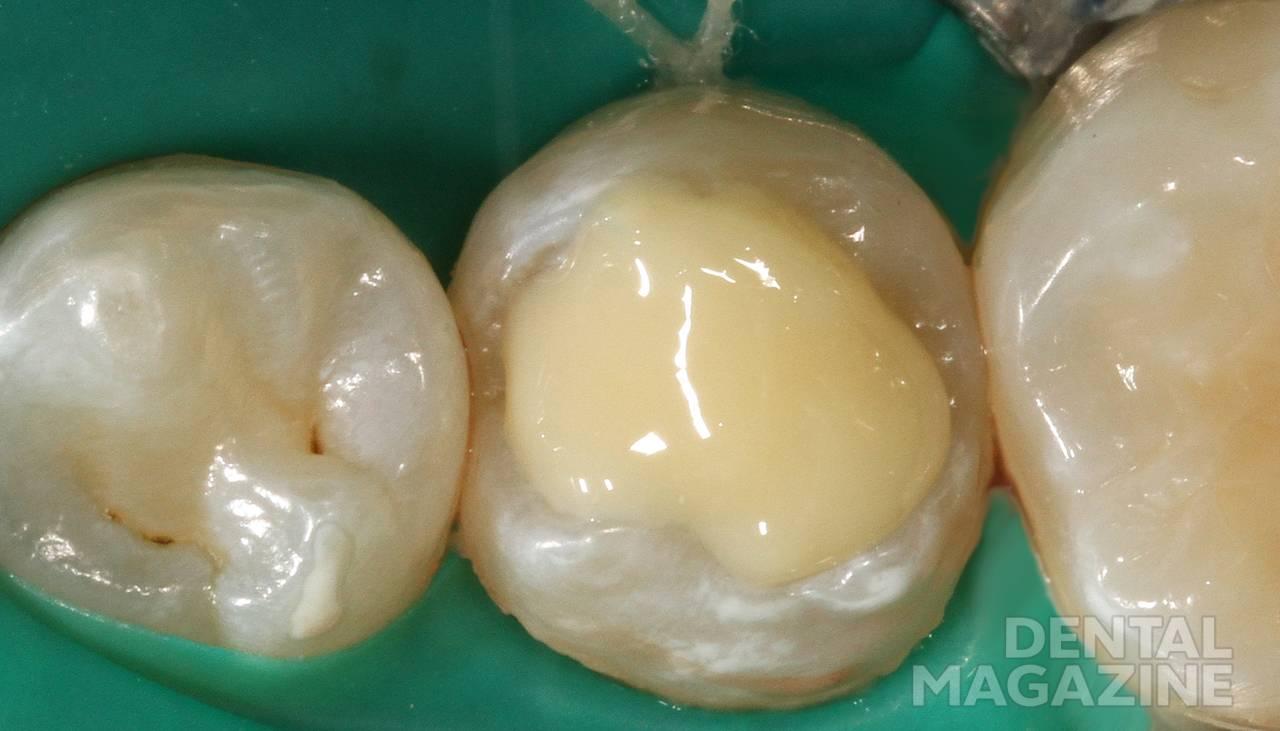 Рис. 8. Заполнение жевательной поверхности зуба 35 жидкотекучим композитом.