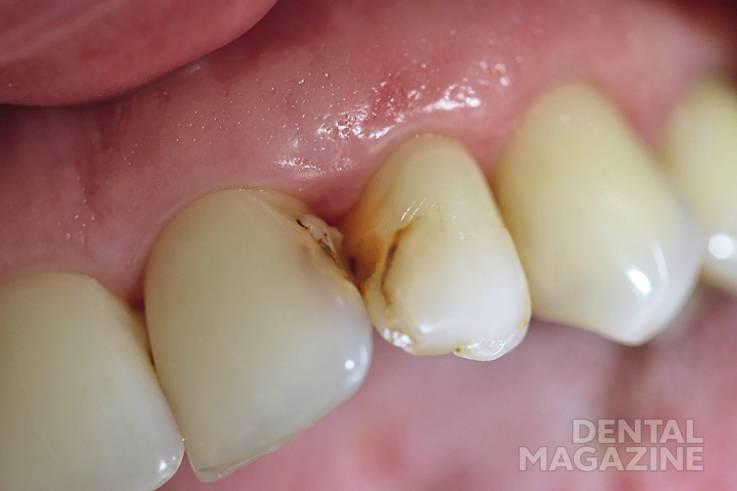 Рис. 2. Несостоятельные реставрации на контактных поверхностях зубов 21 и 22.