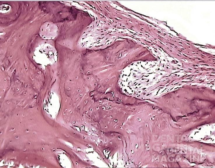 Рис. 6. 6 месяцев после операции. Перестройка костной ткани альвеолярного отростка и формирование капсулы вокруг имплантата в основном заканчиваются. Костная стенка лунки в большей степени компактизируется, хотя местами остается губчатая кость. Костная ткань появляется также в зубцах, соответствующих углублениям в имплантате. Окраска гематоксилином и эозином, увеличение Х 200.