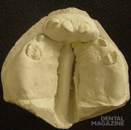 Рис. 2. Результат ортодонтической коррекции положения боковых сегментов верхней челюсти для подготовки к использованию сошникового лоскута при щадящей уранопластике.