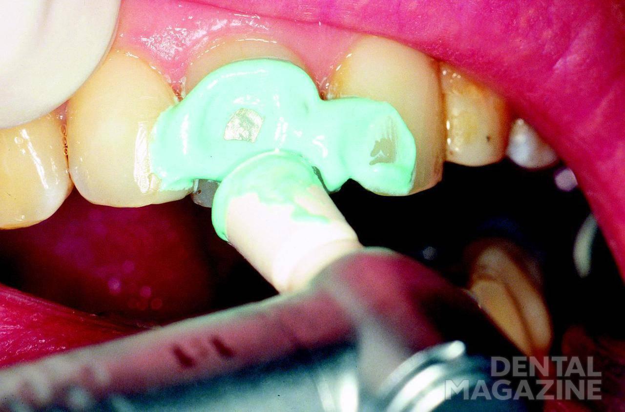 Рис. 3. Удаление мягкого зубного налета.