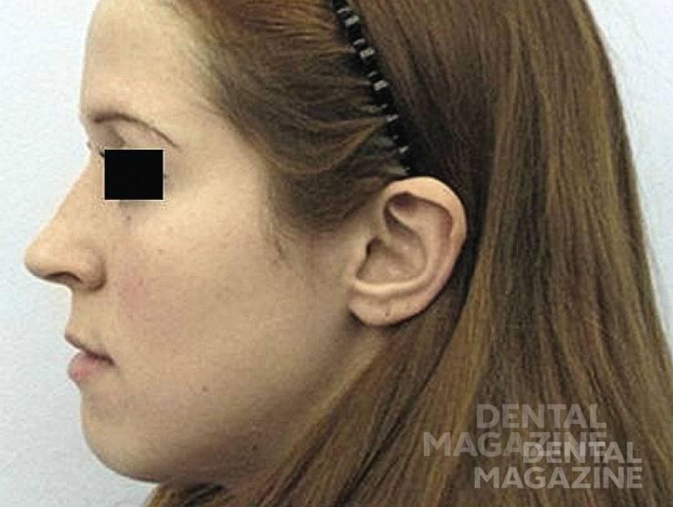 Рис. 2б. Пациентка имеет выраженные нарушения окклюзии на фоне незначительных изменений лицевого профиля.