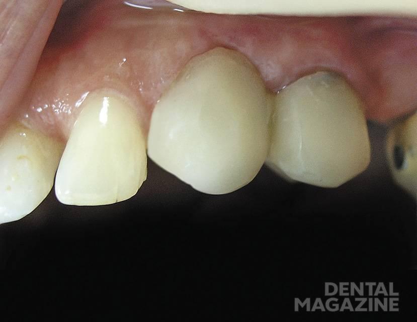 Рис. 10. Внешний вид коронок и тканей десны в области зубов 2.3 и 2.4. Отмечается угасание воспалительных явлений.