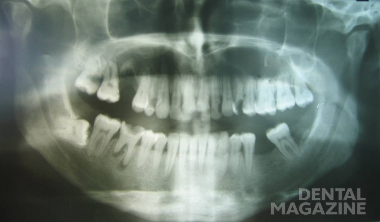 Рис. 3. Пациент Г., 25 лет. Диагноз: хронический диффузный остеомиелит вкрхней челюсти справа. Оро-антральное сообщение через лунку удаленного 16-го зуба. Рентгенологическая картина заболевания.