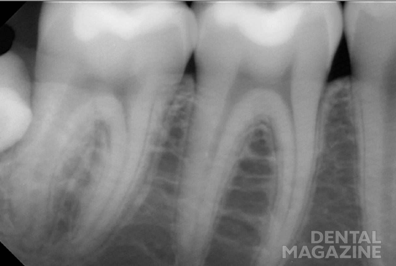 Рис. 19. Материал демонстрирует отличную рентгеноконтрастность и адаптацию к стенкам полости.