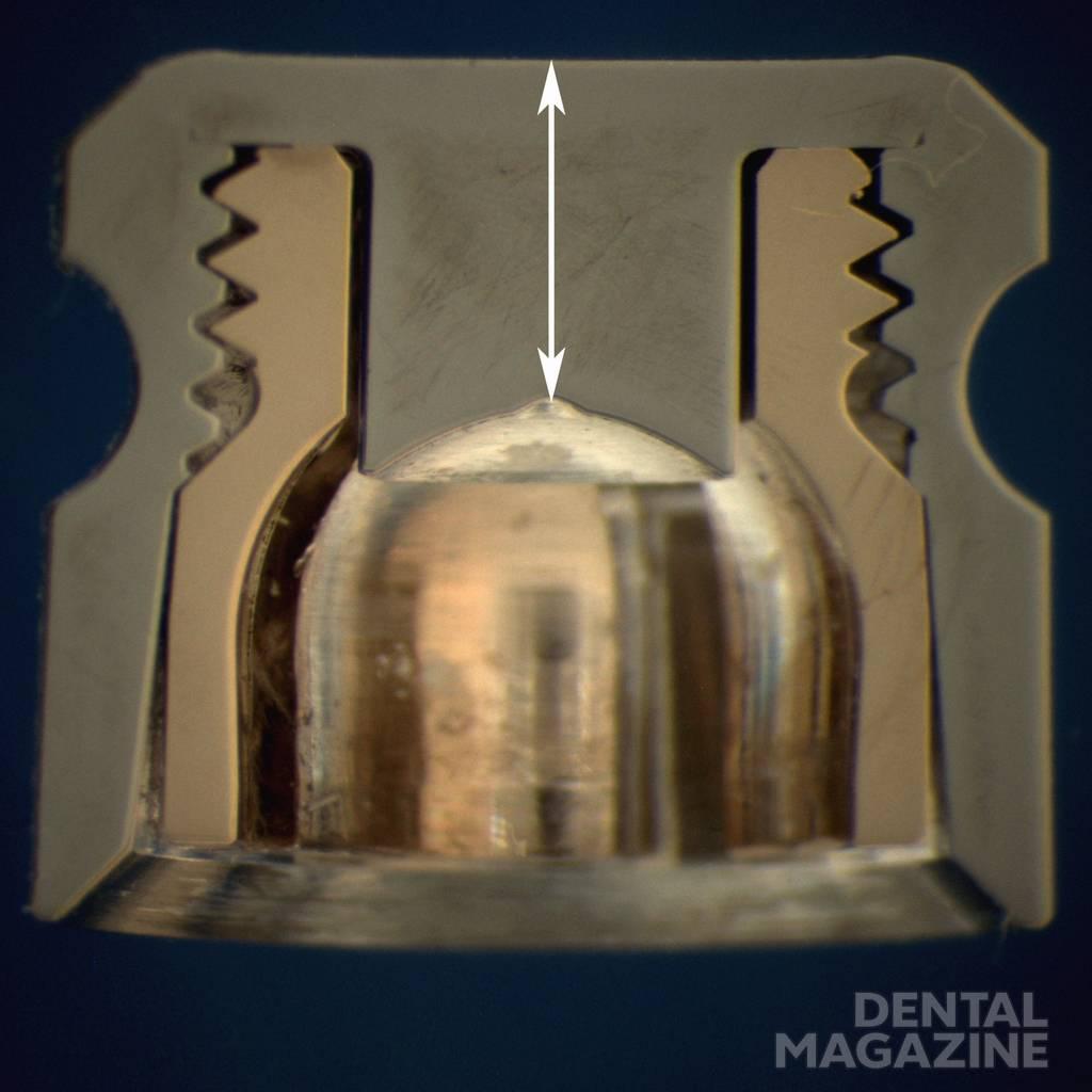 Рис. 2. Вид матрицы Dalbo®-Plus в поперечном сечении. Матрица состоит из титанового корпуса и ретенционного кольца с лепестками (золотосодержащий сплав). Высота титанового корпуса по центру (обозначена стрелкой белого цвета) составляет 1,5 мм.