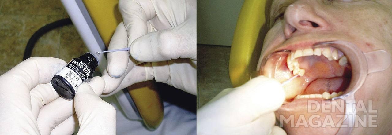 Рис. 9. Нанесение бондинговой системы Bond force фирмы Tokuyama на опорные поверхности зубов.