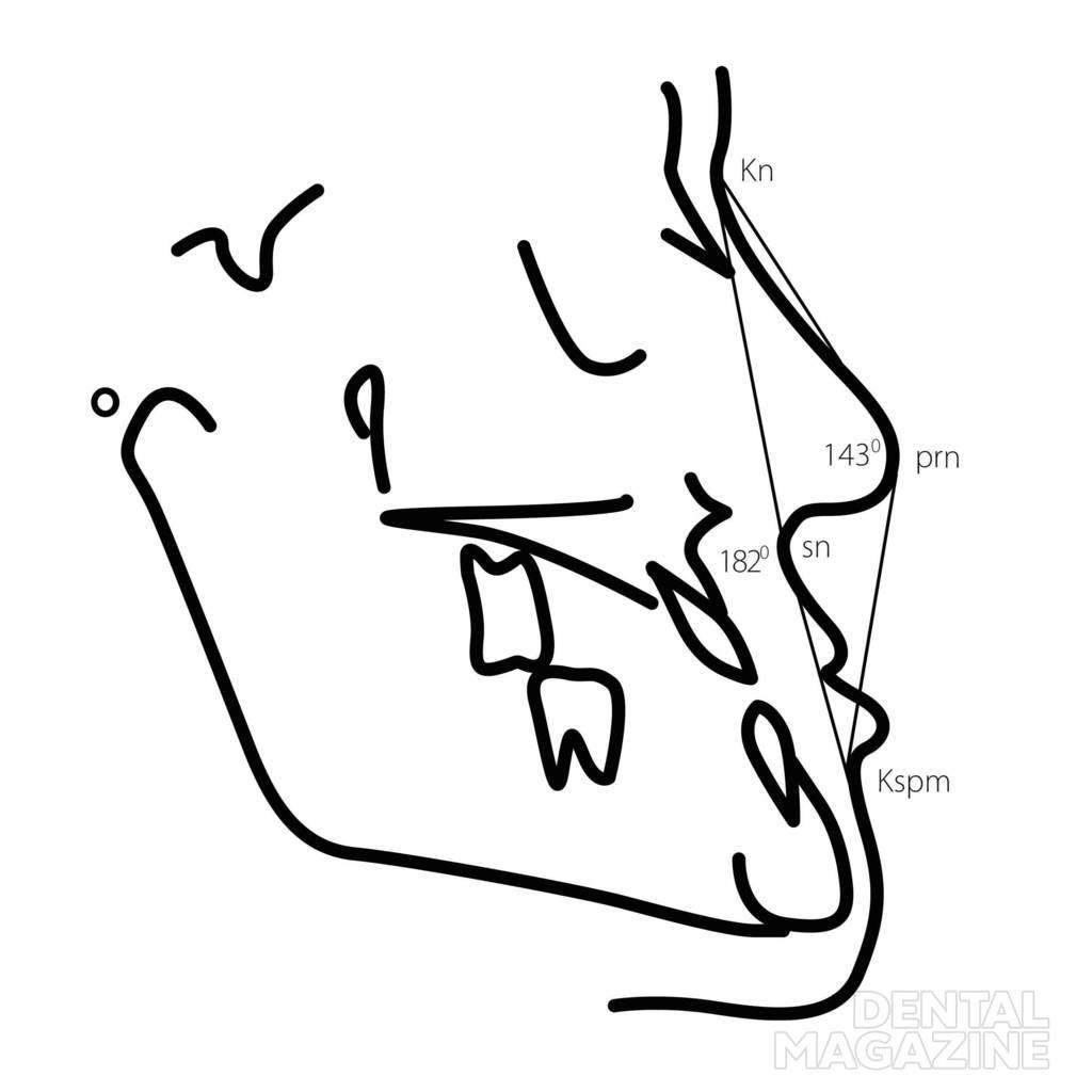 Рис. 14. Степени выраженности нарушений эстетики лица в сагиттальном направлении для пациентов с выпуклым (а — в) и прямым либо вогнутым типом лицевого профиля (г — е): 1-я степень, 2-я степень, 3-я степень.
