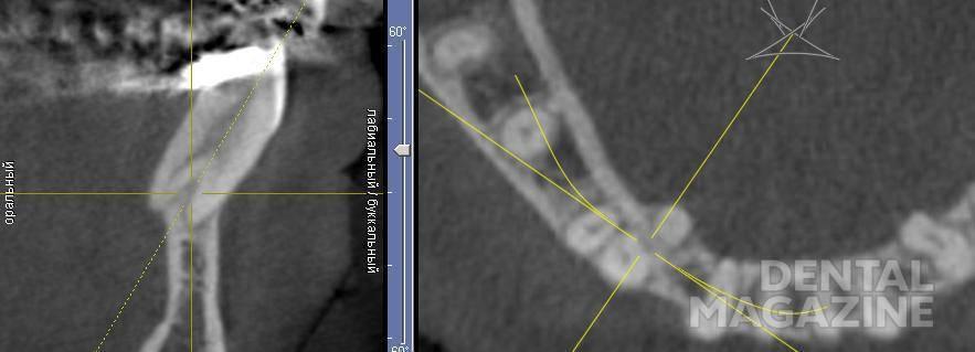Рис. 5. «Срез» КЛКТ пациента РС в ходе ортодонтической коррекции.