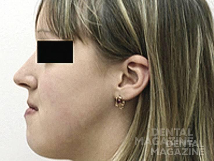 Рис. 1б. Пациентка имеет выраженные изменения профиля лица.