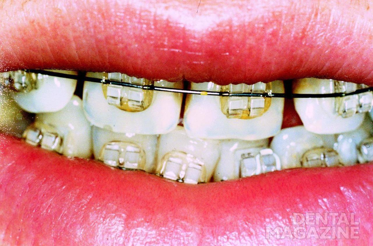 Рис. 2. Вид зубов пациентки К. с брекетами.